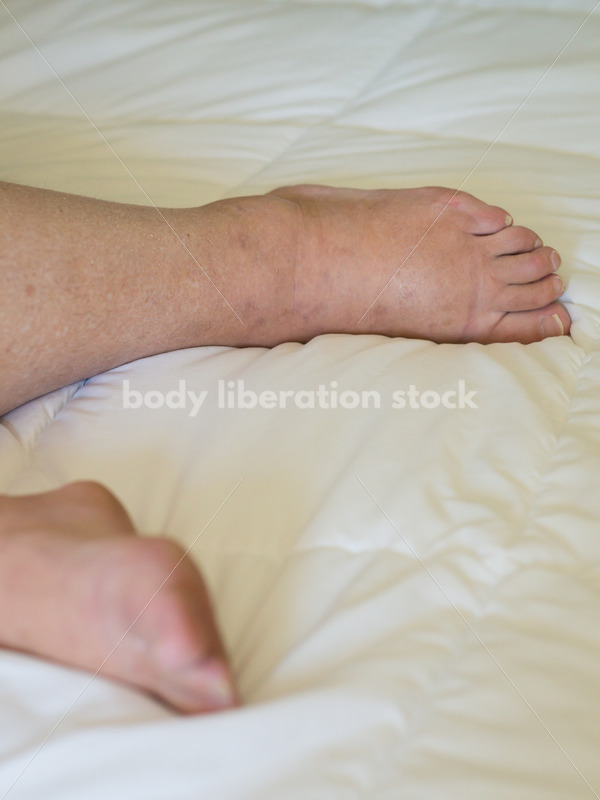 Eating Disorder Recovery Body Image Stock Photo: Close-Up View of Recovering Woman - Body Liberation Photos