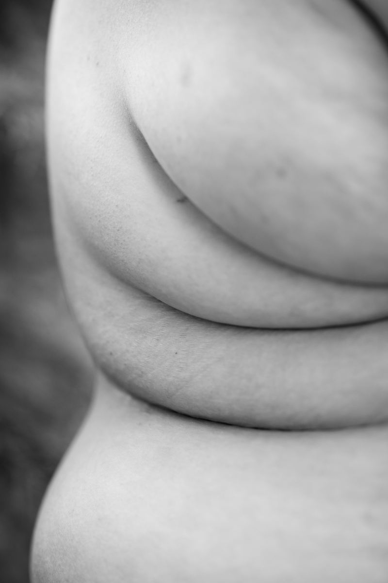 A fat woman's shoulder, side rolls and hip are shown in a black-and-white photograph.