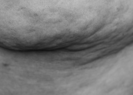 The side rolls of a fat body are show in a black-and-white photograph, with highly textured skin.