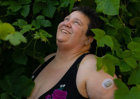 A fat white person with short brown hair, wearing a floral-print black swimsuit top with bare arms and belly, looks up smiling among grapevines with green leaves. A glucose monitor is attached to their arm.
