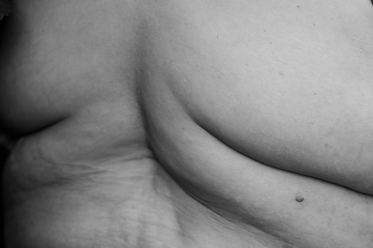 A fat woman's back is shown in black and white, with rolls, stretch marks and other skin texture.